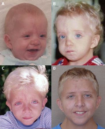 Noonan syndrome - Images   BMJ Best Practice