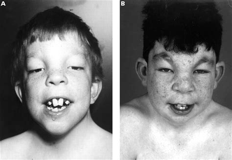 New MR/MCA syndrome with distinct facial appearance and